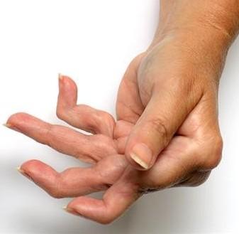 Rheumatoid Arthritis - Affected hand